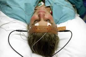 elektroşok tedavisi