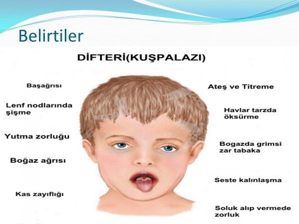 Difteri aşısı