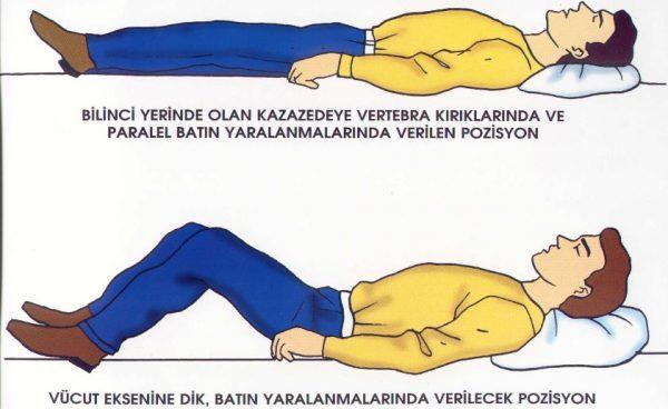 Ciddi yaralanmalarda pozisyonlar