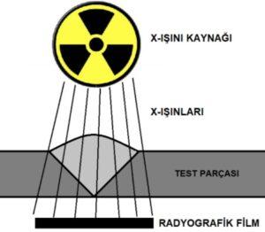 Radyografik Test